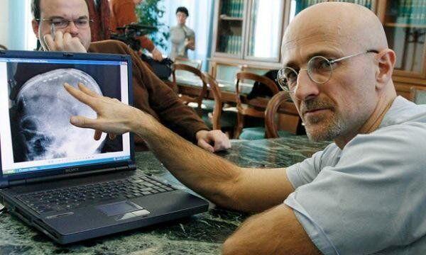 جراح الأعصاب الإيطالي سيرجو كانافيرو
