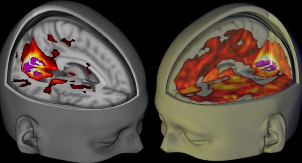 تأثير الفضاء على الدماغ البشري