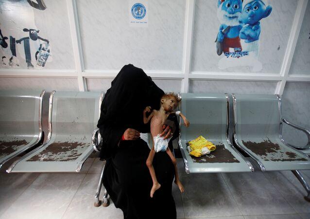 امرأة تتعالج في اليمن