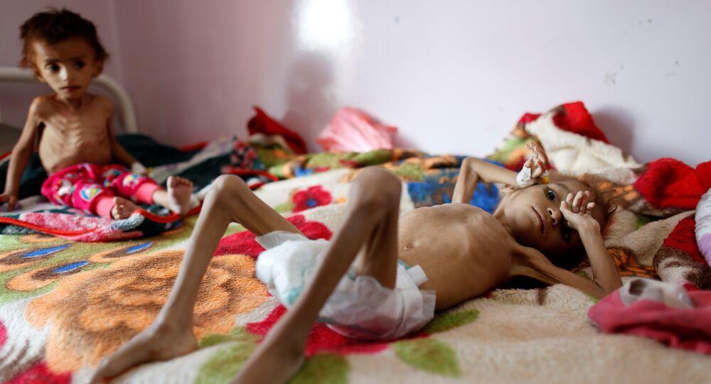 أطفال اليمن، المجاعة، 6 أكتوبر/ تشرين الأول 2018